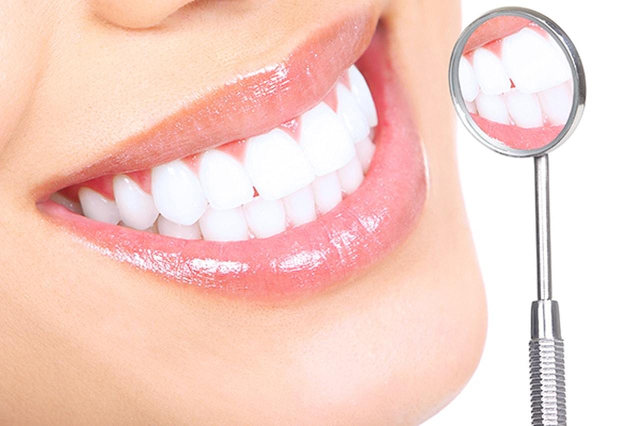 نصائح لتفادي البلاك الذي يصيب الاسنان