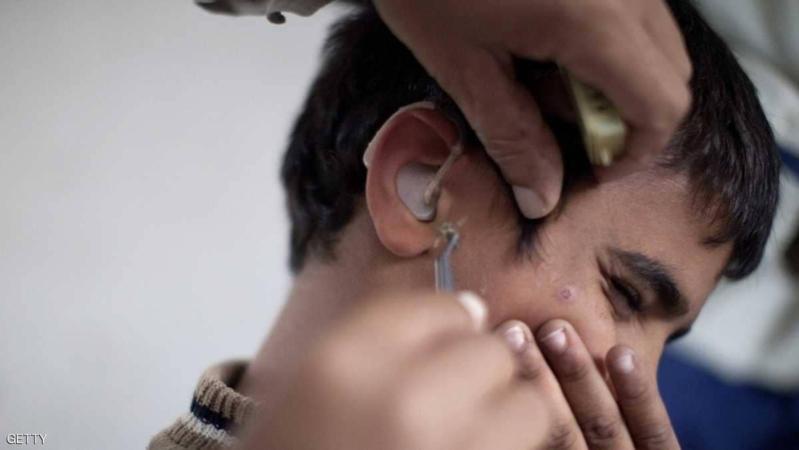 كيفية علاج إنسداد الأذن