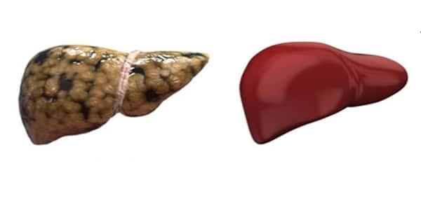 علاج الدهون على الكبد