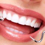 مخاطر جير الأسنان