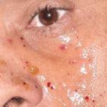 """تعرض محمود عبد المغنى لإصابة فى وجهه أثناء تصوير """"حملة فرعون"""""""