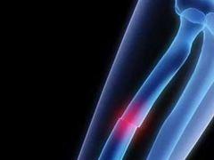 إكتشاف طرق جديدة لعلاج كسور العظام