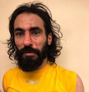 رد فعل غريب من إدارة الاتحاد على ضرب لاعب الفريق حسين عبدالغني